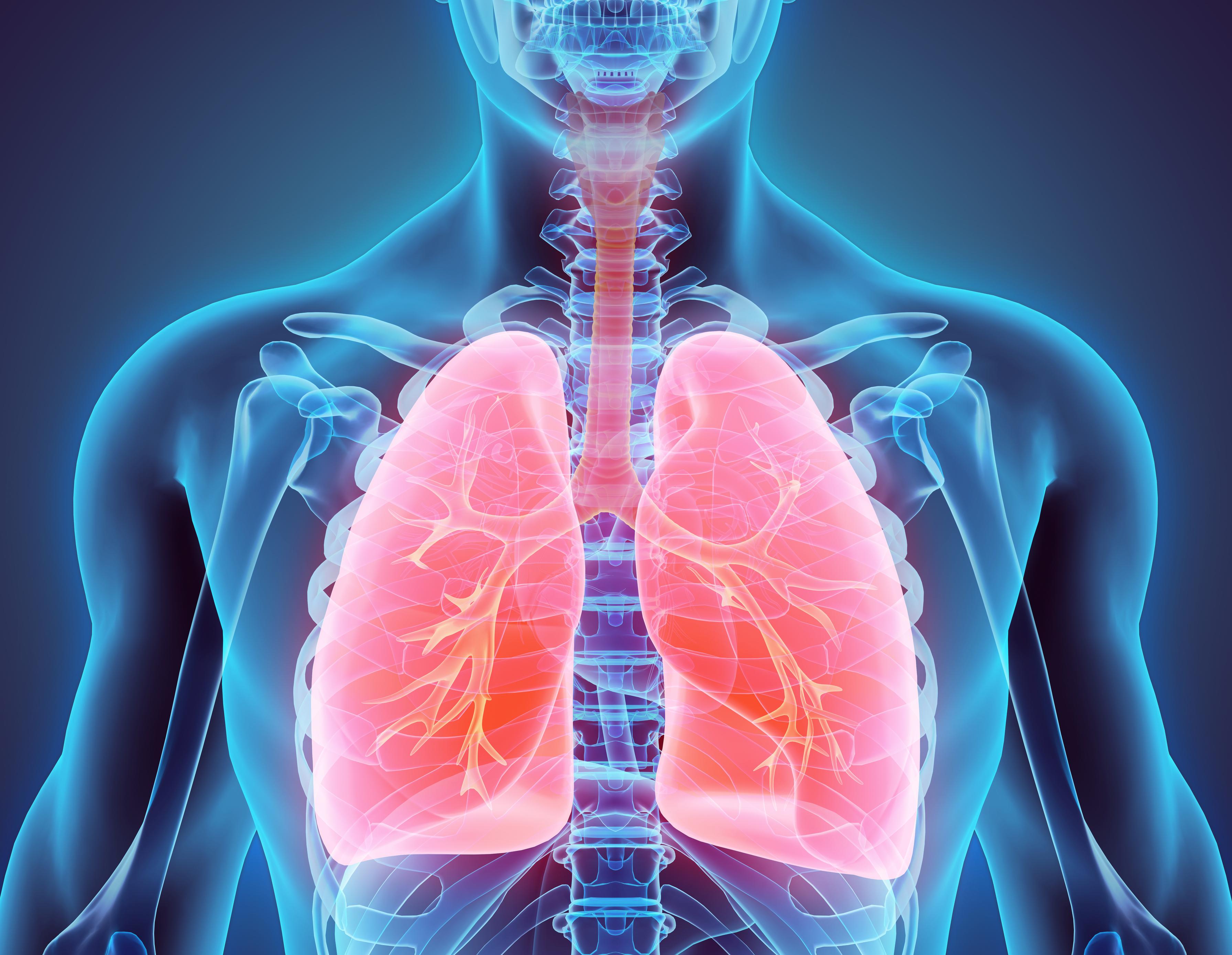 Poumon enflamés représentant l'asthme chez le patient
