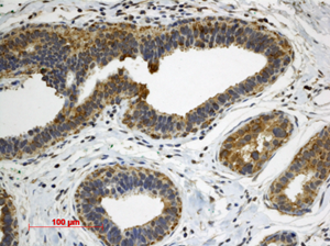 immunohistochemistry of patient breast hyperplasia