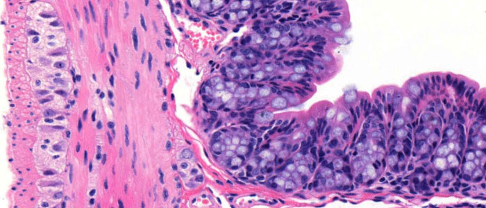 Hematoxylin Eosin in the mouse cecum