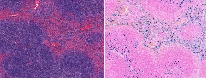 H&E Staining and Prussian Blue Iron staining in mouse spleen