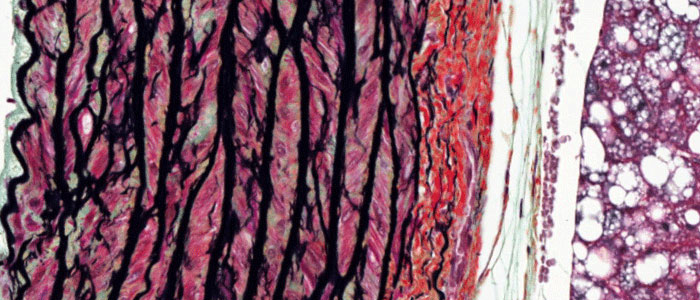 Movat Pentachrome stain in the rat lung