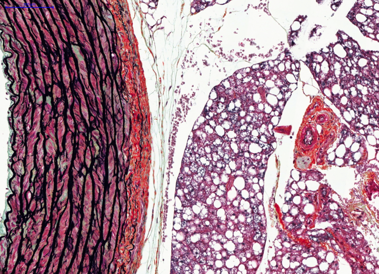 Movat Pentachrome stain in the rat lung.