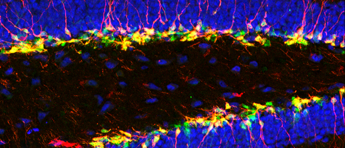 Brain section imaged with confocal microscope showing nuclei in blue, neurons in red and cell bodies in green