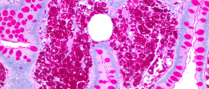 Image of a HE stain - Intraductal papillary neoplasm in liver Hilum