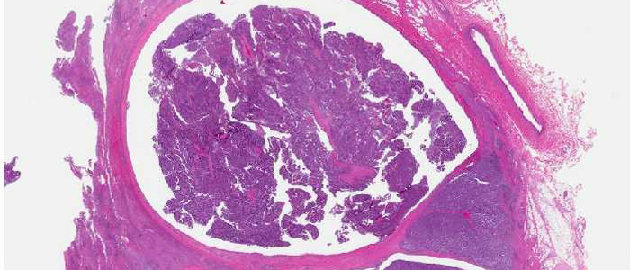 Image of a PAS stain - Whipple disease in duodenum