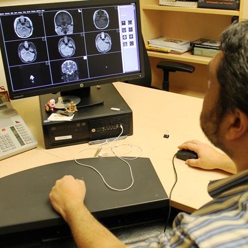 A physician examining photos of the brain