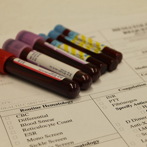 Tubes of blood on a requisition sheet
