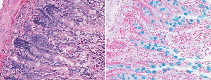 H&E staining and Alcian Blue staining on goblet cells in the intestine