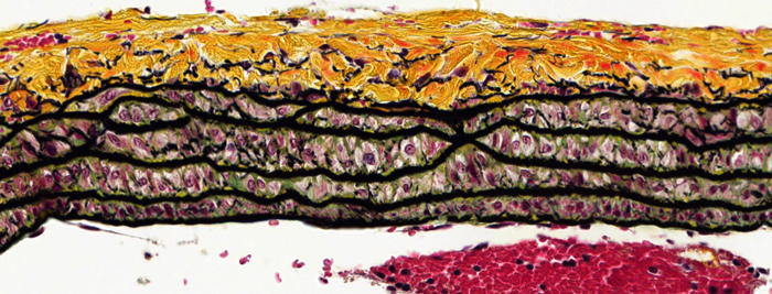 movat pentachrome staining in rat lung