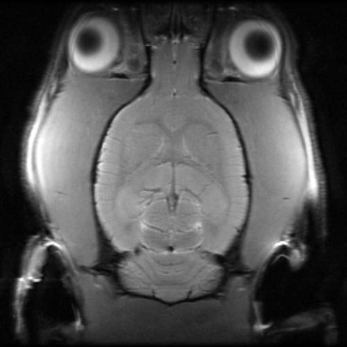 IRM, cerveau de rat  (Dr. Corbett)