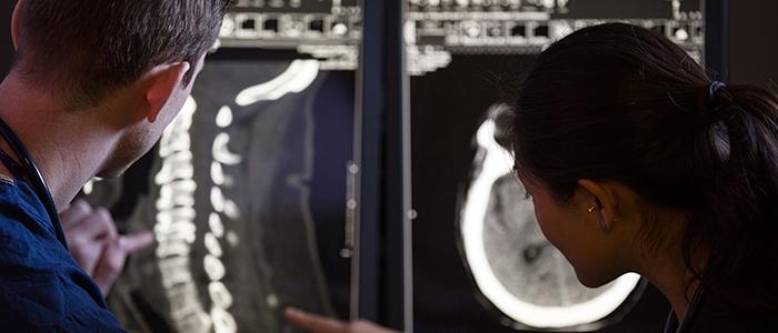 Un résident et une résidente examinent une radiographie d'un rachis