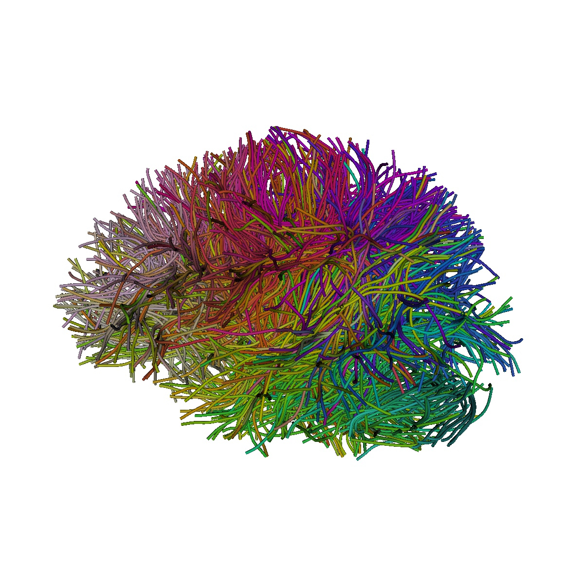 3D reconstruction of white matter tracts in the brain obtained through magnetic resona3D reconstruction of white matter tracts in the brain obtained through magnetic resonance imaging tractographynce imaging tractography