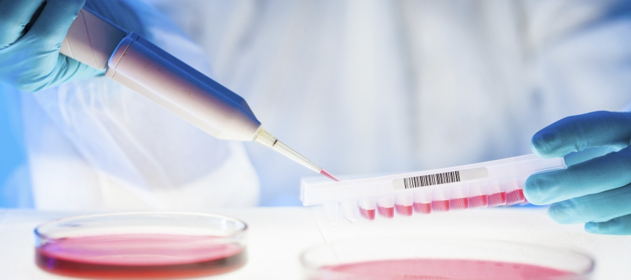 close up of person using a pipette to add samples to a petri dish