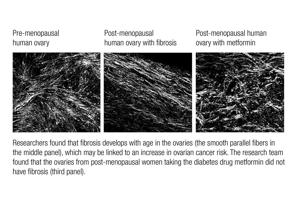 Graphic of the ovary pre- and post-menopause.