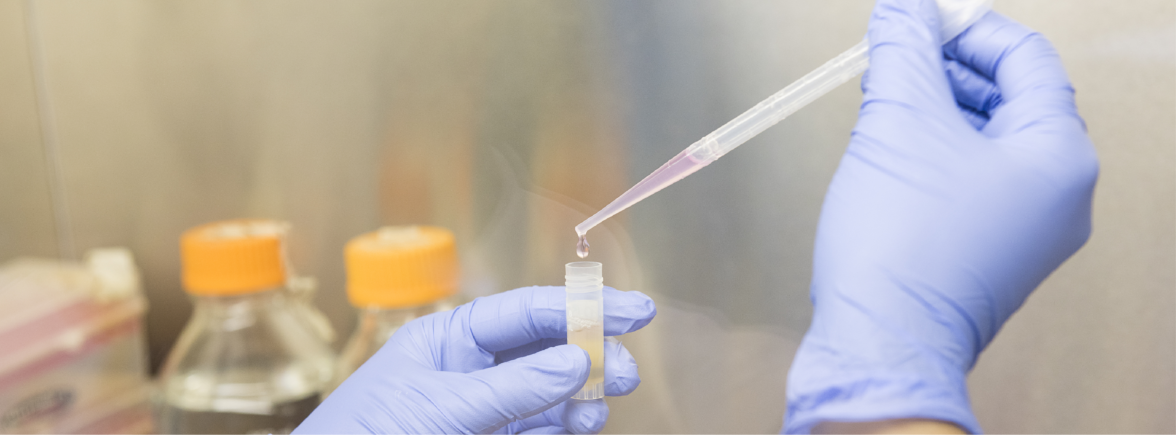 a hand holds a pipette