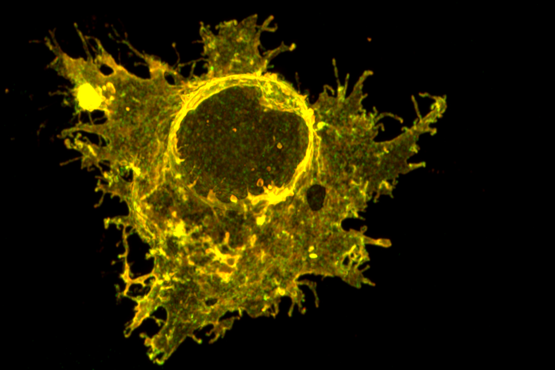 Human melanoma cell under a microscope.