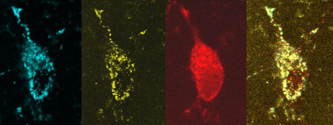 Neurones auxquelles ont a ajouté divers marqueurs biologiques pour pouvoir visualiser les processus physiologiques. Image vue au microscope.