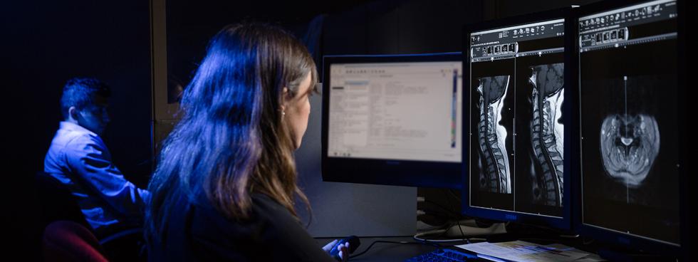 Photo de chercheurs examinant une radiographie de cerveau.