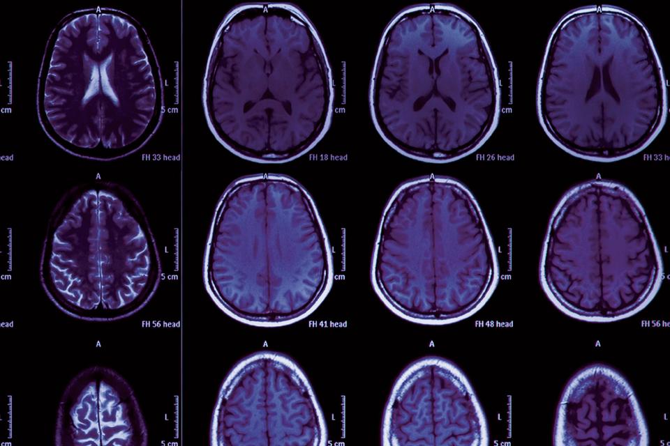 Radiographie du cerveau.