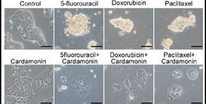 Lignées cellulaires du cancer du sein humain